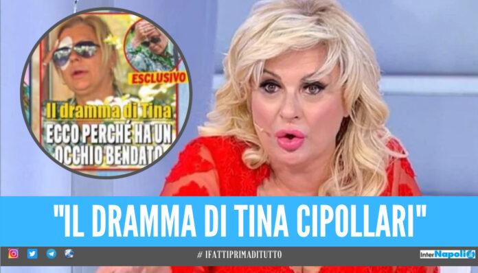 Tina Cipollari in ospedale, incidente per la star di 'Uomini e Donne': «Olio bollente sull'occhio»