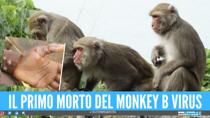 Monkey B Virus vaiolo delle scimmie