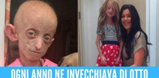 Aveva il corpo di una donna di 144 anni, 18enne uccisa dalla sindrome di Hutchinson-Gilford