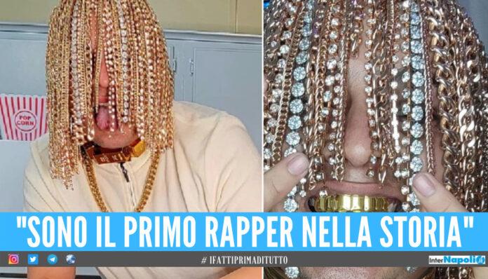 Catene d'oro e diamanti impiantati al posto dei capelli, la follia del rapper Dan Sur